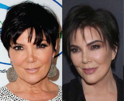 Kardashian Plastic Surgeon