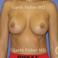 This Before after boob job nudes
