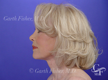Beverly Hills Facelift Surgery After